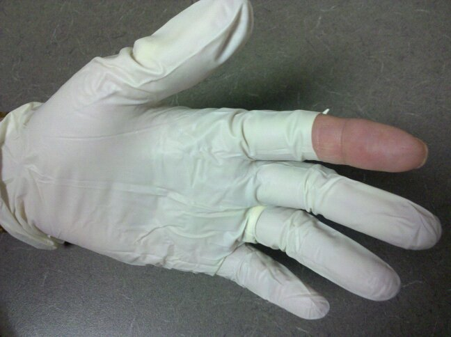Wearing Gloves Is Not Optional Infusion Nurse Blog